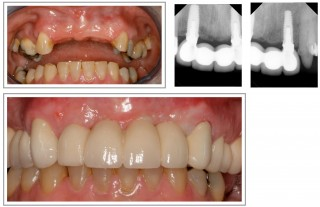 dr_doman_implant_supported_bridge